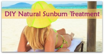 DIY Natural Sunburn Treatment