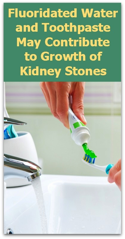 Fluoridated Water-Toothpaste-Kidney Stones-V