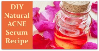 DIY Natural Acne Serum Recipe
