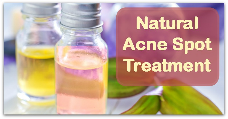 Natural  Acne Spot Treatment